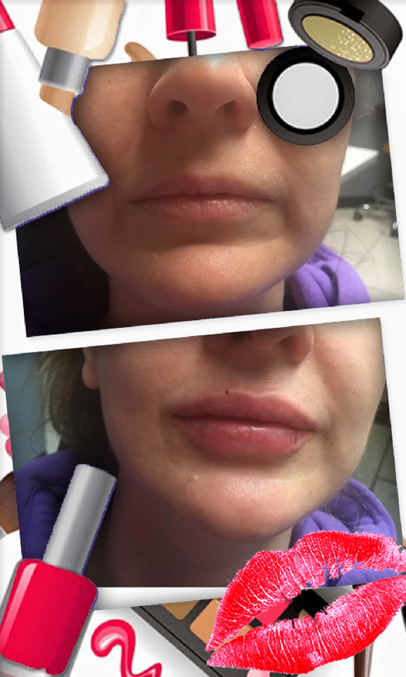 Juvederm lip treatment in The Woodlands, TX - Before and After Photo #2