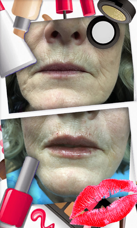 Juvederm lip treatment in The Woodlands, TX - Before and After Photo #3