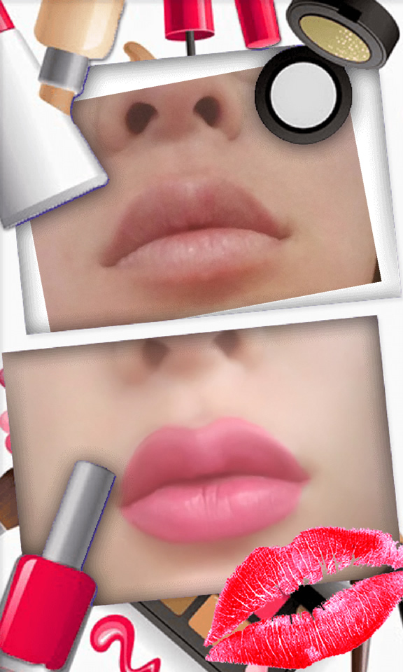 Juvederm lip treatment in The Woodlands, TX - Before and After Photo #4